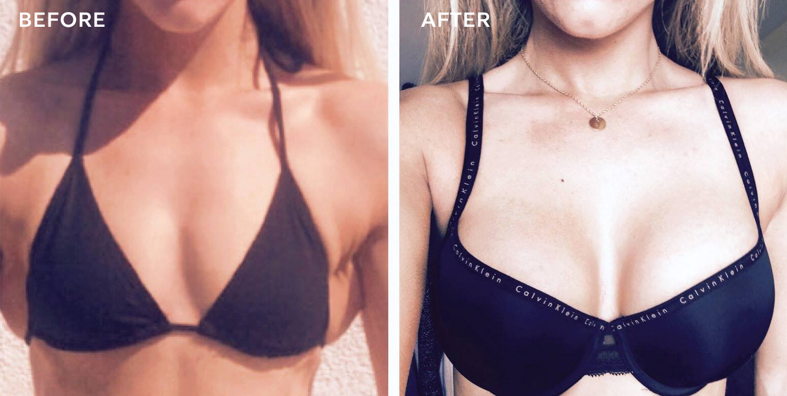 Breast augmentations before after